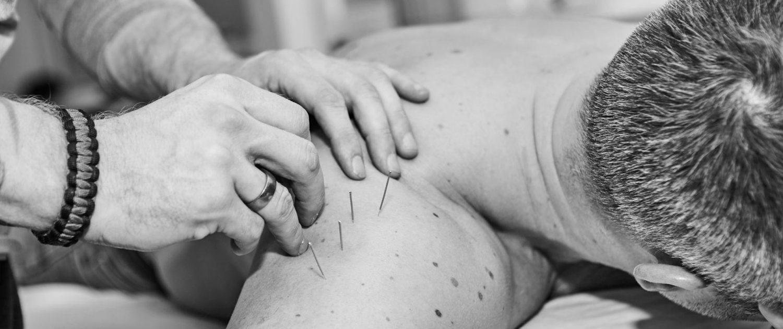 laser akupunktur aalborg